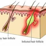 Foliculita – cauze, simptome, diagnostic si tratament