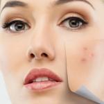 Tratamente naturiste care te scapă de acnee