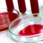 Ce boli poate ascunde hemoglobina scăzută?