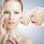 Ce boli ar putea ascunde pielea foarte uscată