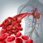 Cheaguri de sânge: cauze, simptome, metode de prevenire