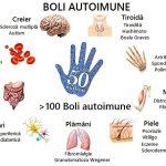 Factorii declanșatori ai bolilor autoimune