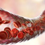 Trombocitoza: simptome, cauze, tratament
