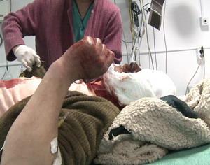Bagat in spital de o consateanca