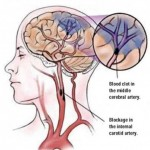 Accidentul vascular cerebral – cauze, factorii de risc si simptomele