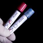 Testul HIV: când să-l faci şi ce implică