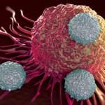 Combinate, imunoterapia şi chimioterapia reduc semnificativ riscul de recidivă a cancerului