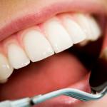 Albirea dinţilor: cum se face şi când e recomandată